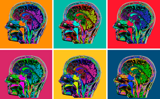 Neurology Headache School