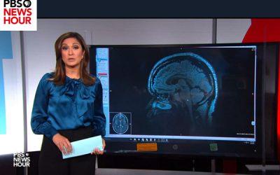 PBS News Hour – Not Just a Headache